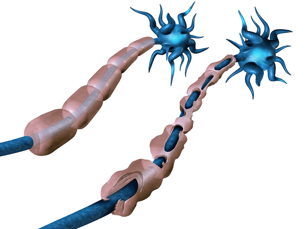 multiple sclerosis nerve - healthy v damaged myelin