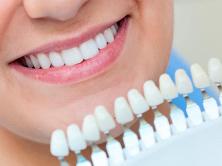 Mitos y verdades del Blanqueamiento dental