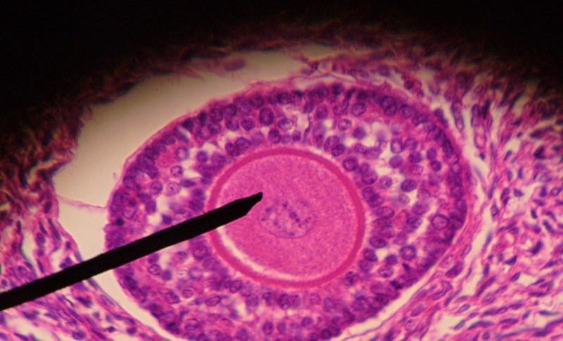 SEMEAR fertilidade - FIV/ICSI