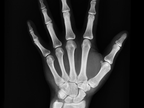 The Calcium-Bone Connection
