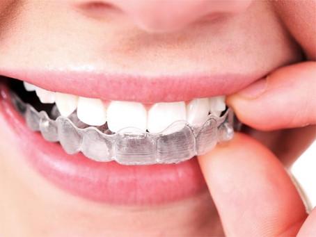 Şeffaf plaklar, Aligner lerle ortodonti tedavisi sonrası dikkat edilmesi gerekenler.