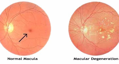 Leading Cause of Vision Loss- Macular Degeneration