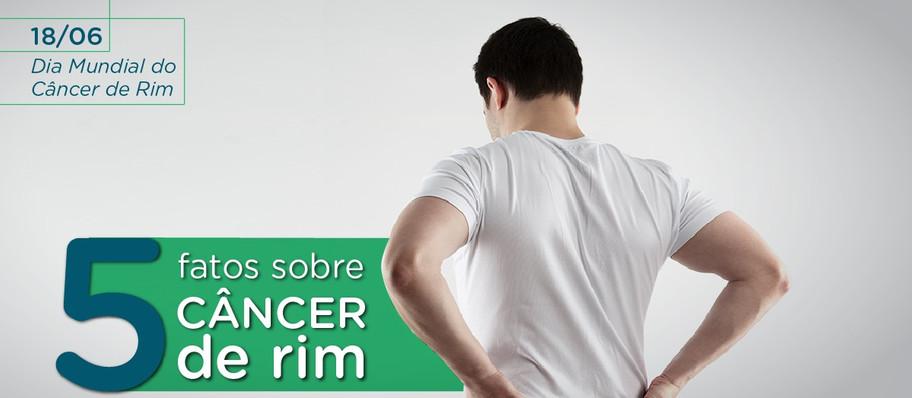 Cinco fatos sobre o câncer de rim