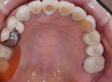 バネが見えにくい入れ歯