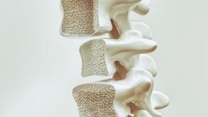 Com o envelhecimento da população fraturas por osteoporose tendem a aumentar