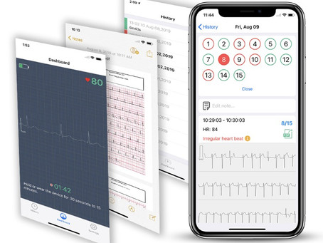 Long-term monitoring of the ECG can help reduce the risk of heart disease