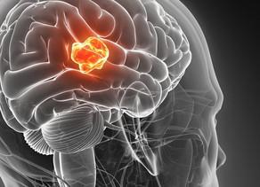 Agresif Beyin Tümörü Teşhisi