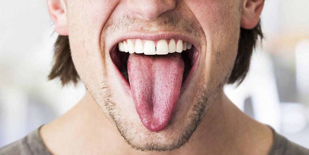 La lengua y su relación con enfermedades sistémicas dentista Monterrey