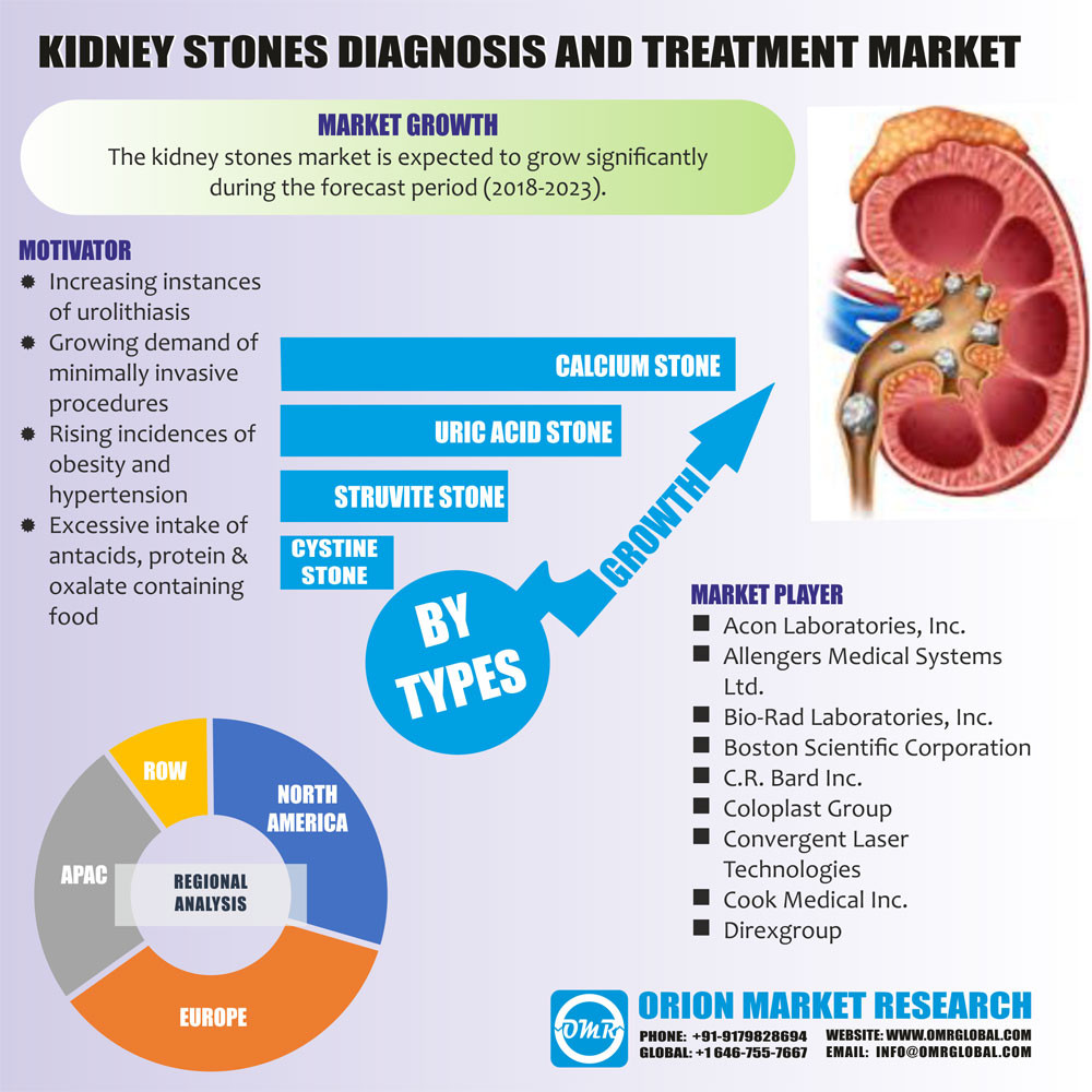 Evolution Of Advanced Technologies For Diagnostic And Treatment Of Kidney Stone