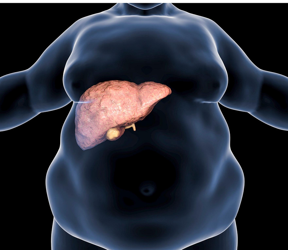 Visceral fat accumulates around organs. High Intensity Training can reverse metabolic syndrome.