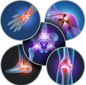 Physiotherapy for arthritis