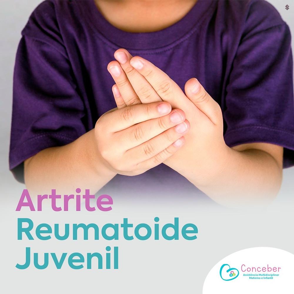 Artrite Reumatoide Juvenil - Ortopedista Pediátrico