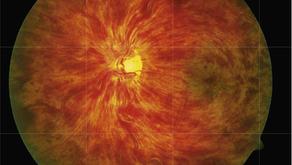 Common Retinal Conditions