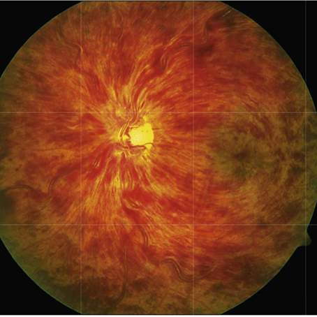 Common Retinal Conditions