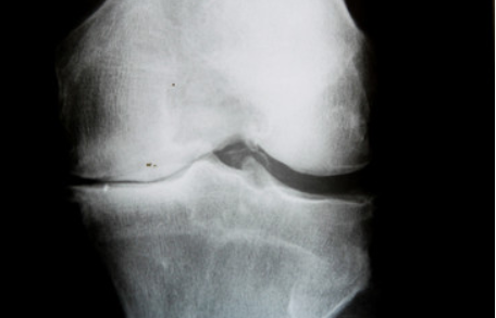 Kinésithérapie : intérêt de la rééducation pré-opératoire de prothèse totale de genou