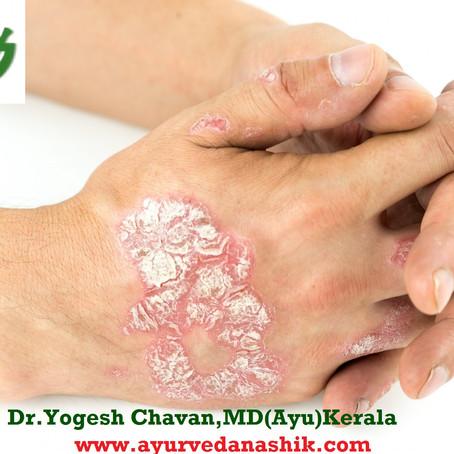 Ayurvedic Treatment of Psoriasis in Nashik