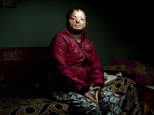 FOTÓGRAFO VIAJA O MUNDO RETRATANDO MULHERES VÍTIMAS DE VIOLÊNCIA