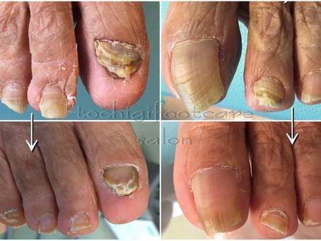 厚い爪~定期的なフットケアと日常的なフットケア