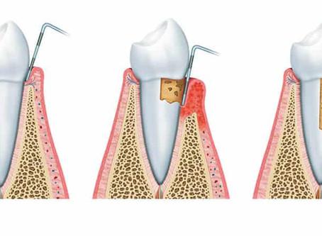 ¿Qué es el curetaje dental por cuadrantes?