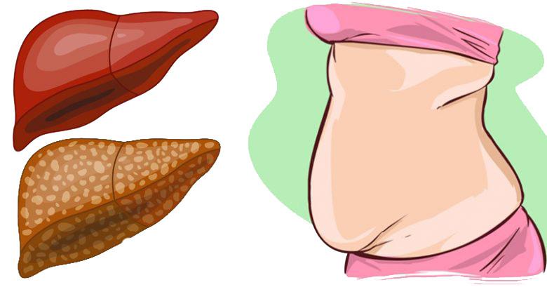 gordura no fígado - esteatose hepática