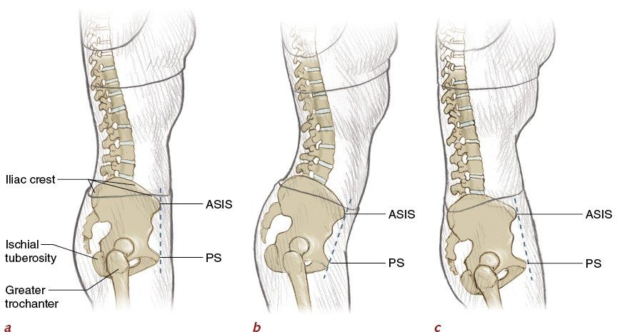 """Figure 2.8: a) shows a neutral spine with lumbar lordosis. This is the """"ideal position""""  b) shows hyperlordosis or hyperextension of the lumbar spine    c) shows hypolordosis of the lumbar spine or """"flat back"""""""