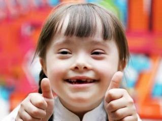 La trisomie 21 ou le Syndrome de Down