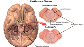 Exploratory data analysis and prediction on Oxford Parkinson's Disease Detection Dataset (Part 1)