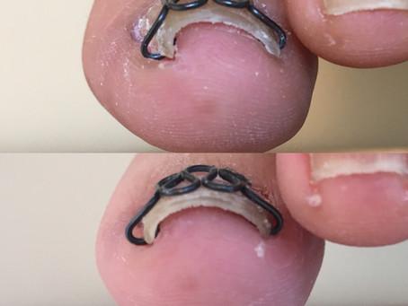 片側の巻き爪