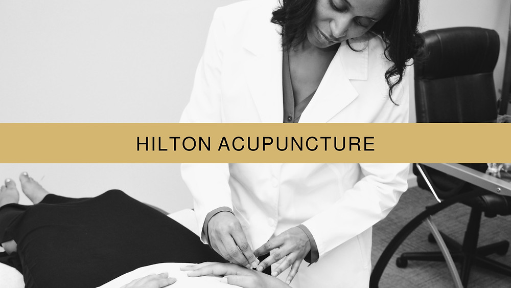 Acupuncture with Dr. Monica