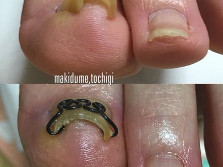 巻き爪矯正ツメフラ法  施術例