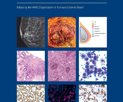 2019 WHO classification of breast tumours