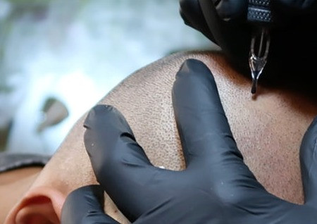 Does Scalp Micropigmentation Hurt?