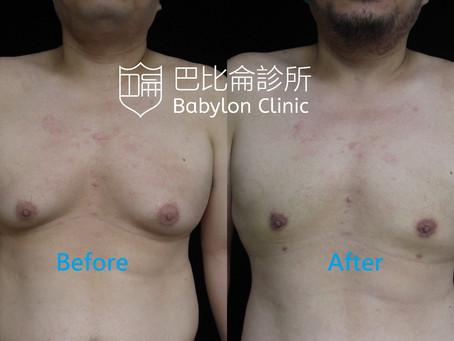 神啊,請讓我有平坦的胸部吧!!男性女乳手術案例分享~