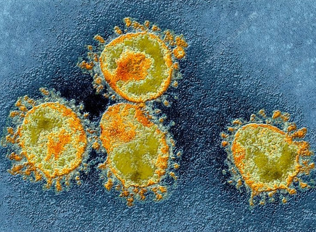 Coronavirus: What Every Business Owner Needs to Know today!