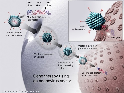Will Gene Therapy Be the Next Cure for Duchenne Muscular Dystrophy?