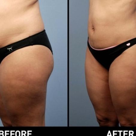 Flatten Your Belly!  #Bodyfx Sale