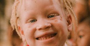 Instituto realiza trabalho de inclusão social com pessoas albinas