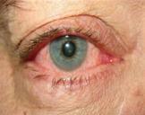 Conjuntivitis Viral ¿Qué es y cuáles son sus síntomas?