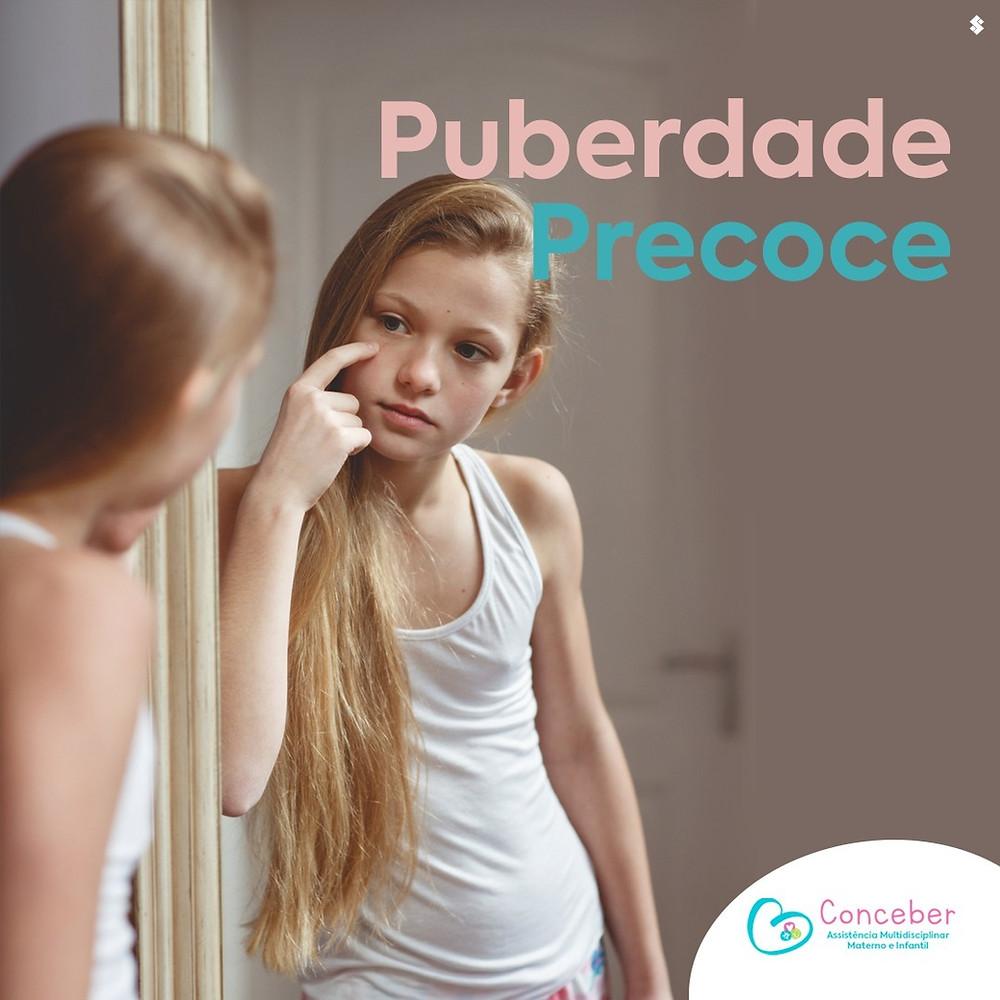 Puberdade Precoce-Endocrinologista Pediátrico