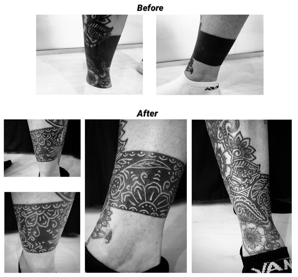Tatuaggio cover-up sulla gamba. Bianco su nero.