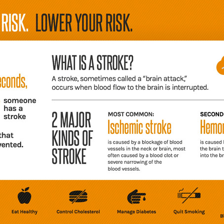 Know your risks for stroke