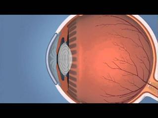 ¿Que es el Glaucoma?