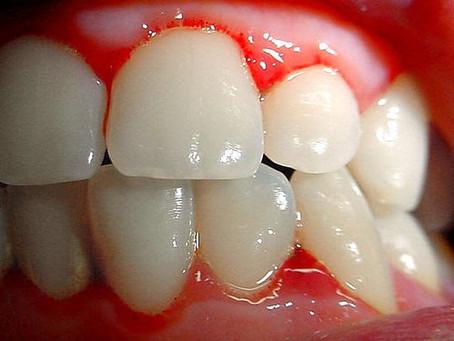 Enfermedad periodontal ¿Te sangran las encías?