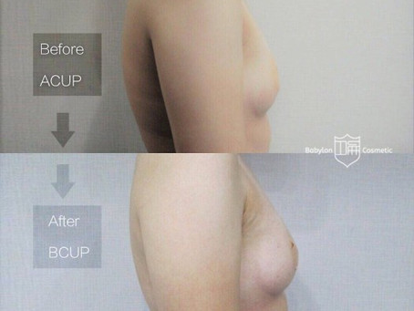雷神診療間『自體脂肪豐胸後,胸部到底可以放大多少罩杯?』