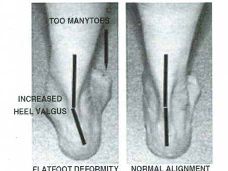 Ankle Injury - Posteromedial Ankle Pain Differential Diagnosis