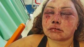 'Logo estou numa boa', diz mulher que foi agredida por quase 4h em seu apartamento