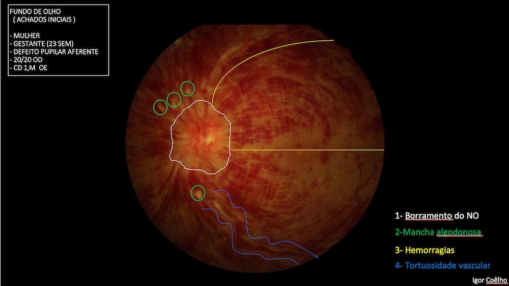 Oclusão de Veia Central da Retina