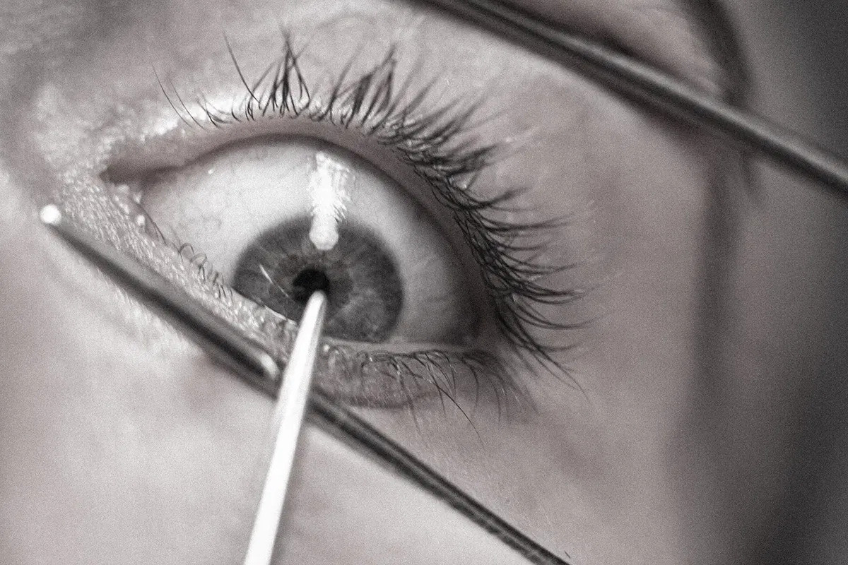 Lobotomie Auge Presse