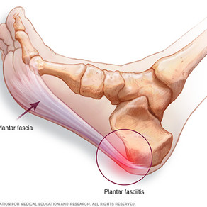 Plantar Fasciitis, Foot Pronation & Sciatica