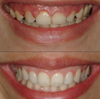 ¿Cómo tratar la sonrisa gingival?